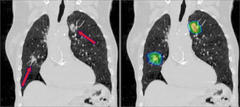 An example of two primary lung cancers, with the right image showing the high-dose radiation region (45 Gray colorwash).